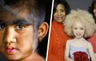 11 niños nacidos con características muy especiales y fuera de lo común
