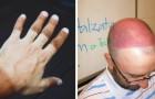 Abbronzatura imbarazzante: 15 volte in cui i raggi del sole hanno lasciato il segno