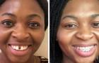 15 foto di persone che sono riuscite ad ottenere il sorriso che desideravano grazie all'apparecchio