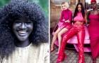 Es ridiculizada durante años debido a su color de piel: ahora, es una modelo con mucho éxito