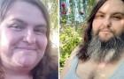 """Diese Frau hat beschlossen, ihr Gesicht nicht mehr zu rasieren und sich einen Bart wachsen zu lassen: """"So fühle ich mich weiblicher."""""""