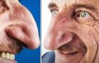 De grootste neus ter wereld is van een 71-jarige man: hij is bijna 9 cm