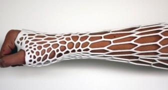Dites adieu au plâtre classique: voici qu'arrive l'exosquelette léger et imperméable