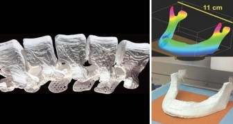 Stampare ossa in 3D e impiantarle nell'arco di 24 ore: questo progetto lo rende ora possibile