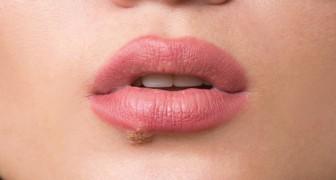 Vittime dell'herpes labiale? Ecco 10 rimedi naturali che possono esservi d'aiuto
