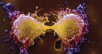Het Eiwit Dat Verantwoordelijk Is Voor Uitzaaiingen Van Tumoren Is Ontdekt. Gerichte Medicijnen Kunnen Het Mogelijk Stoppen
