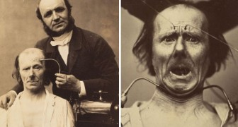 La genèse des expressions du visage humain: l'intéressante étude d'un neurologue français de 1862