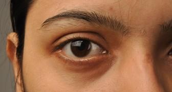 Een onderzoek toont aan dat grootte van pupillen nauw verbonden is met het IQ