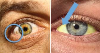 Augendiagnose: 12 Dinge die man an den Augen ablesen kann