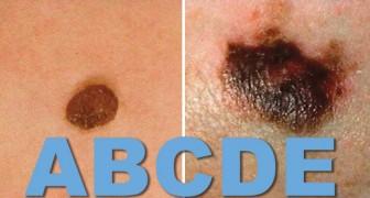 La règle de l'ABCDE pour distinguer une grain de beauté bénin d'un mélanome: tout le monde doit la connaître!