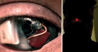 EyeBorg: cet homme s'est fait implanter une prothèse-caméra dans l'œil droit