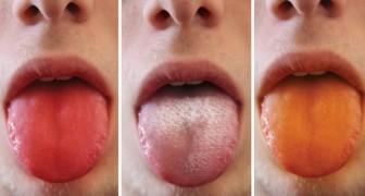 9 Aspekte der Zunge, die uns etwas über unseren Körper verraten