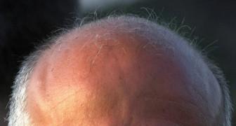 Si vous êtes chauve, la « faute» est celle des mères: les 280 gènes liés à la calvitie sont sur le chromosome X