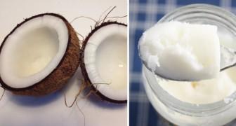 kokosolie is niet zo gezond: dit is wat je moet weten over dit 'hippe' ingrediënt