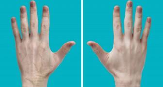 As mãos envelhecem mais rapidamente que o rosto: veja algumas regras para fazer com que pareçam mais jovens