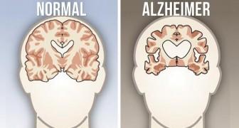 9 abitudini che devi attuare per evitare il morbo di Alzheimer e le altre malattie da demenza