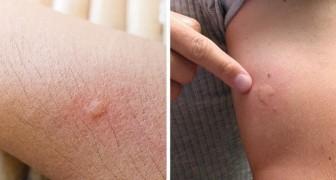 7 motivi per cui vieni punto dalle zanzare molto più di chiunque altro