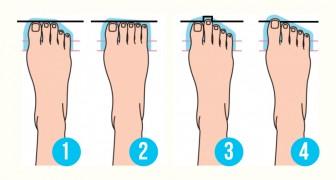 Quelle forme a votre pied? La réponse révèle quelque chose sur votre personnalité