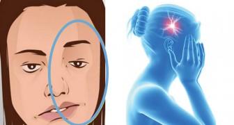 Questi sono i 7 sintomi di un ictus prima che si manifesti