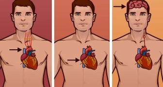 Impara la differenza fra un infarto, un arresto cardiaco e un ictus. Potresti salvare una vita