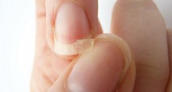 Vos ongles sont faibles et se cassent? Voila ce que votre corps tente de vous dire