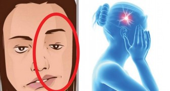 7 signs that can be manifested before a stroke occurs