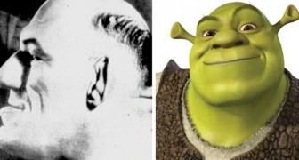 L'histoire curieuse et tragique de l'homme atteint d'acromégalie qui a inspiré le personnage de Shrek