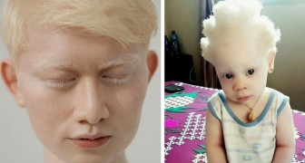 How are albino people in various parts of the world? Here is the answer!