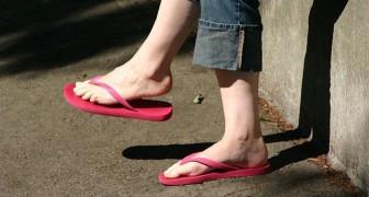 Indossare abitualmente le infradito espone il piede a diversi rischi: ecco quali sono