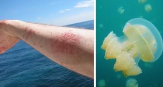 Cosa fare se vieni punto da una medusa questa estate