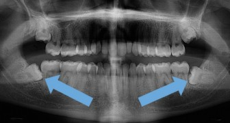 Est-il vraiment nécessaire de toujours retirer les dents de sagesse ?