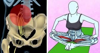 6 eenvoudige oefeningen om van rugpijn en zenuwpijn in de heup af te komen