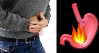 Acid reflux! Here are 7 foods to counteract it without taking drugs!