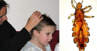 Here is an economic, natural, and homemade remedy to get rid of head lice once and for all