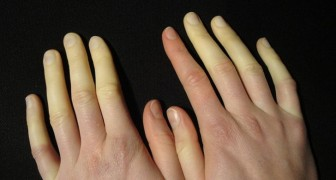 Kalte Hände und Füße, die ihre Farbe ändern: Das Raynaud-Syndrom ist weit verbreitet, aber nur wenige erkennen es.