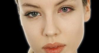 5 segnali che l'occhio ci invia e che non dovremmo mai ignorare