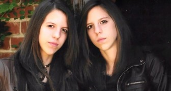 Des jumelles suivent une thérapie pour devenir des hommes, en défiant les préjugés : voici les images avant et après