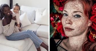17 Meisterwerke der Genetik, die uns an die Schönheit von Defekten erinnern.