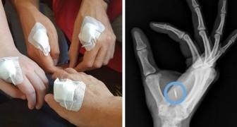 En Suède, de plus en plus de personnes se font implanter une puce dans la main : voici à quoi ça sert