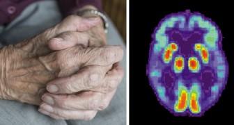 Une équipe de chercheurs a mis au point un vaccin contre Alzheimer : excellents résultats sur les souris
