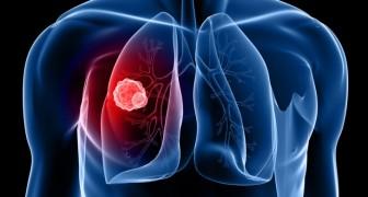 Volgens onderzoekers ziet de toekomst van de strijd tegen kanker er zonniger uit dan ooit dankzij een nieuwe behandeling