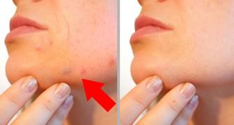 11 aliments qui vous donneront une peau éclatante en une semaine seulement