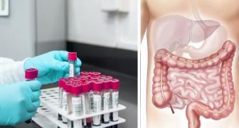 Un nouveau test permet de dépister les tumeurs 15 ans avant l'apparition, avec une simple prise de sang