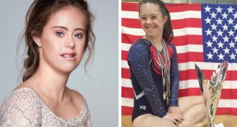 This world champion gymnast with Down syndrome challenges the canons of beauty and becomes a model