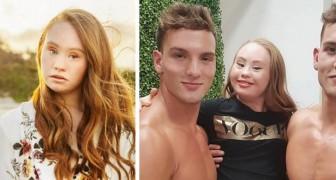 Una ragazza con sindrome di Down decide di diventare modella: ecco come sta cambiando il concetto di bellezza