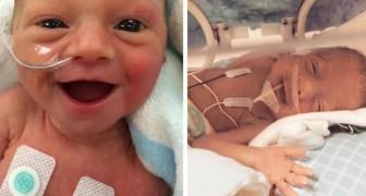 10 photos de bébés prématurés qui sourient parce qu'ils sont heureux de vivre