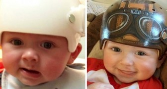 Este artista transforma los cascos médicos para niños en objetos mágicos y divertidos: sus sonrisas alegran el corazón