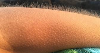 Avez-vous des frissons lorsque vous écoutez votre musique préférée ? Voici pourquoi votre cerveau est spécial, d'après les scientifiques