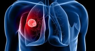 Eine wissenschaftliche Studie entdeckt den Mechanismus um Krebszellen auszuhungern, bis sie untergehen