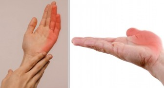 The 7 most frequent causes of numbness in the hands, which should never be ignored